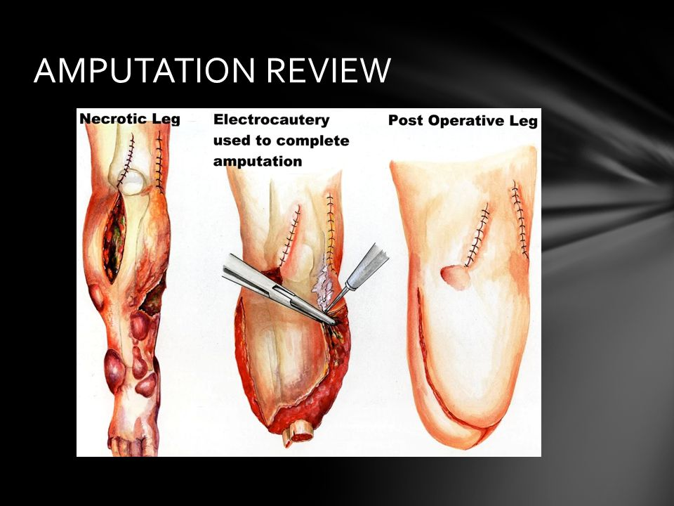 AMPUTATION REVIEW