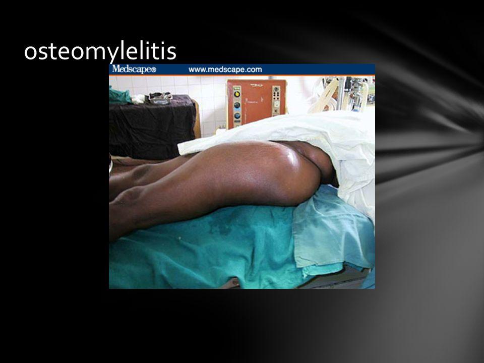 osteomylelitis