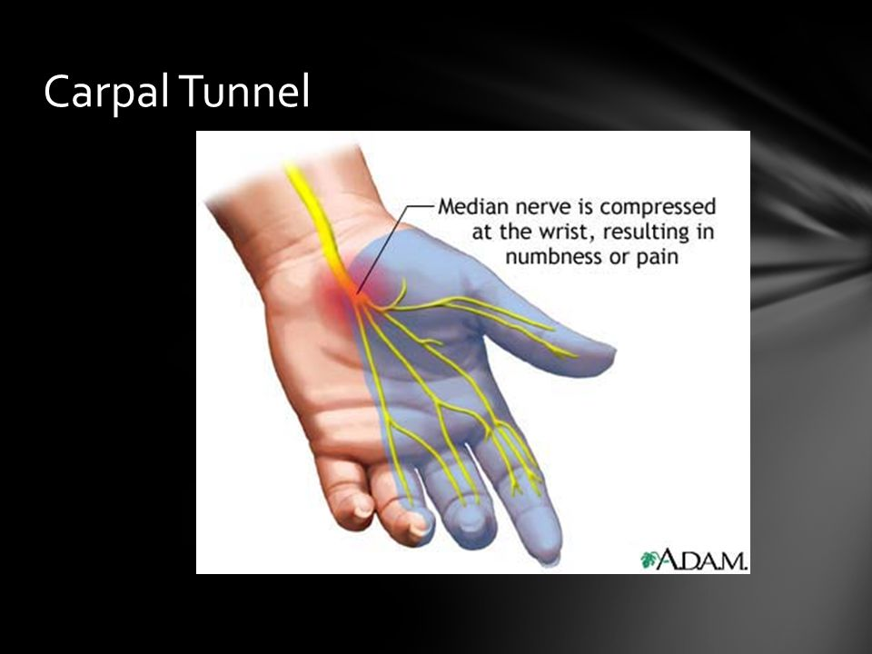 Carpal Tunnel Occurs when the median nerve becomes pressed or squeezed at the wrist. Swelling is one thing that can cause compression.