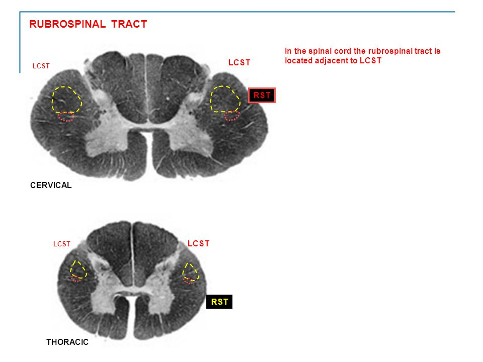 RUBROSPINAL TRACT LCST. In the spinal cord the rubrospinal tract is located adjacent to LCST. RST.