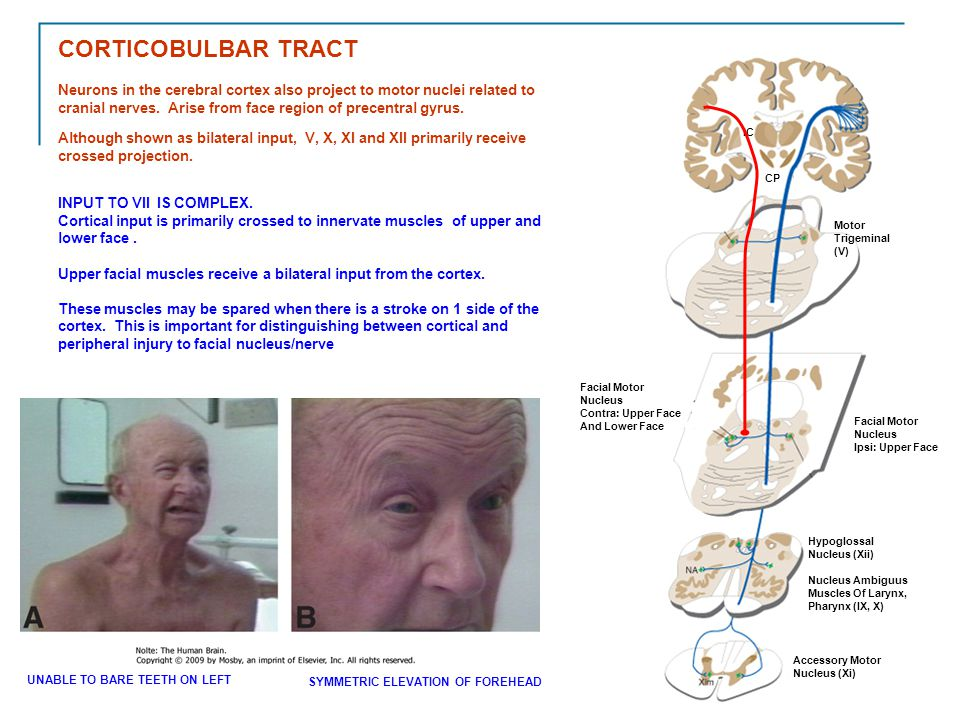 CORTICOBULBAR TRACT