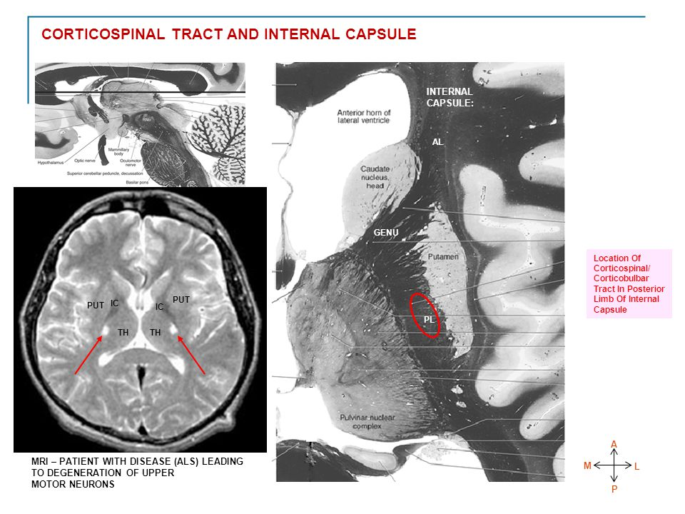 CORTICOSPINAL TRACT AND INTERNAL CAPSULE