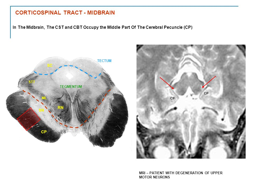 CORTICOSPINAL TRACT - MIDBRAIN