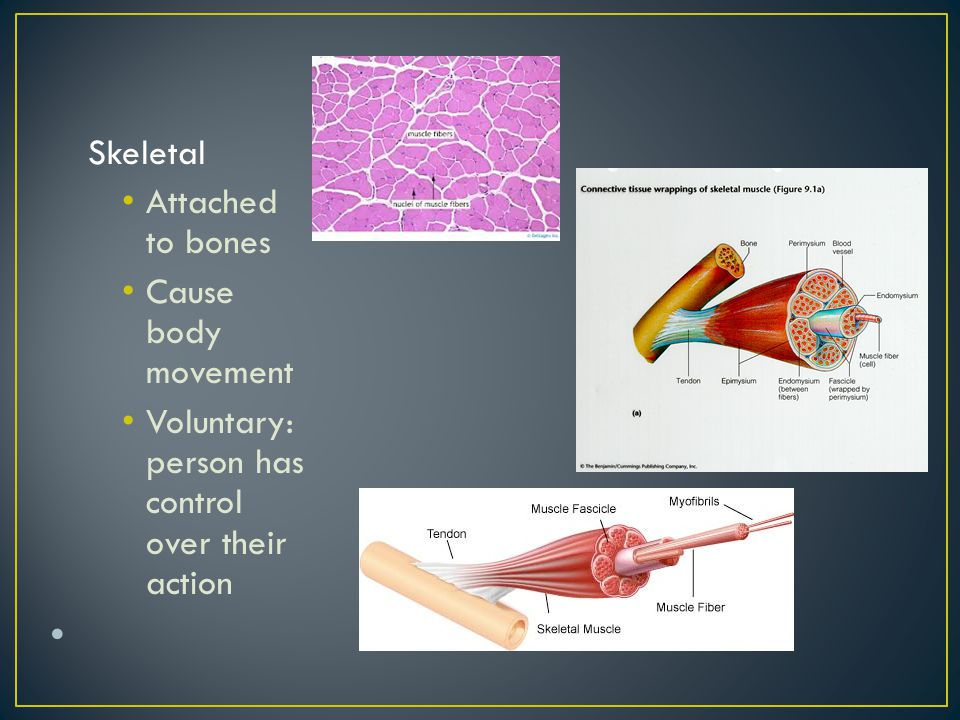 Skeletal Attached to bones Cause body movement