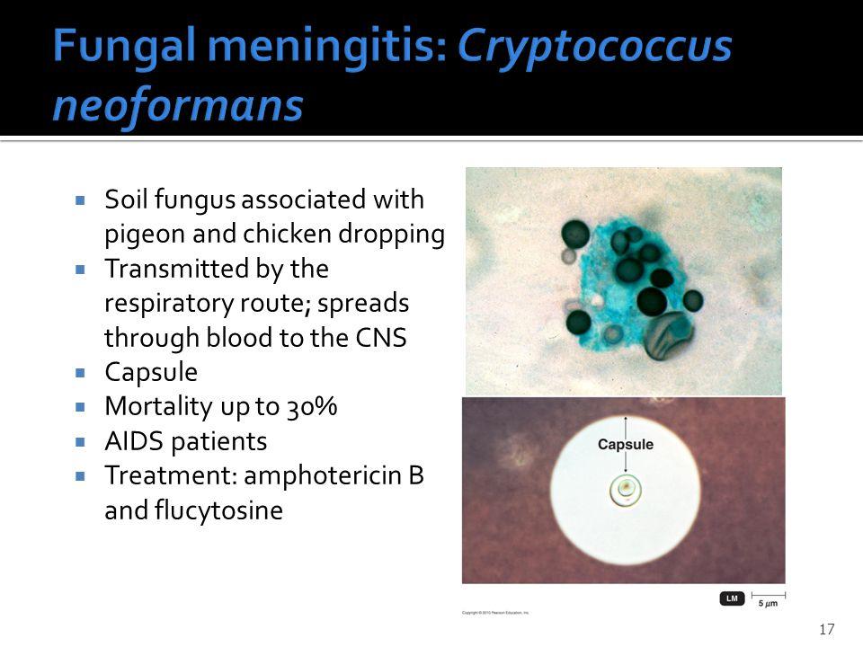 Fungal meningitis: Cryptococcus neoformans