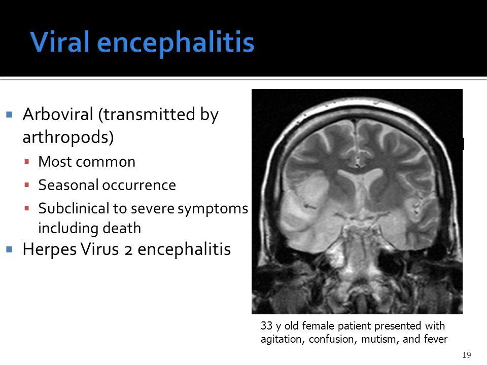 Viral encephalitis Arboviral (transmitted by arthropods)