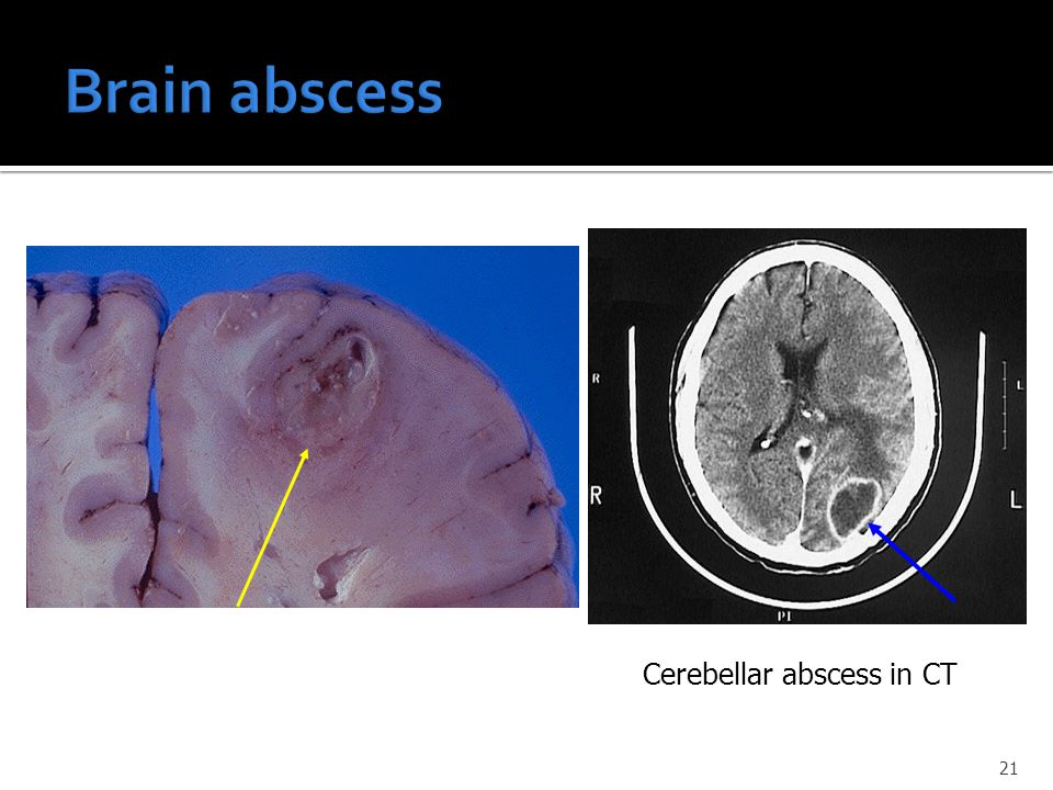 Brain abscess Cerebellar abscess in CT