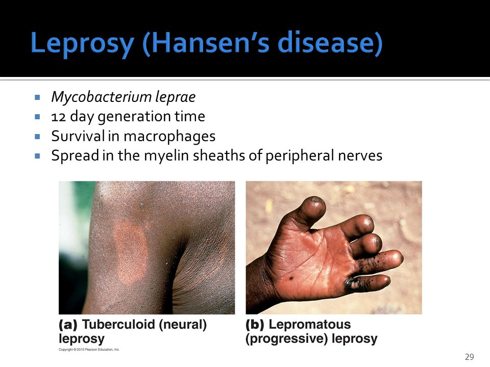 Leprosy (Hansen's disease)