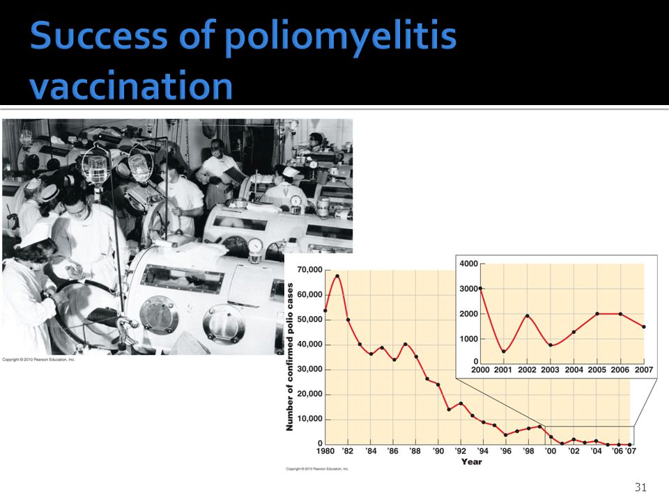 Success of poliomyelitis vaccination