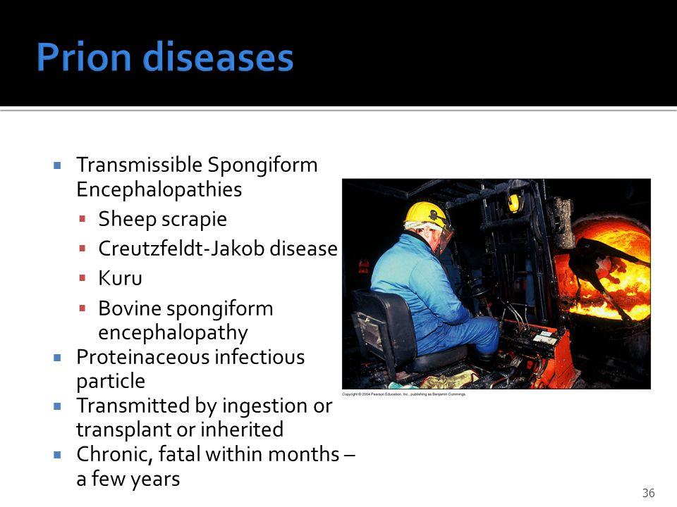Prion diseases Transmissible Spongiform Encephalopathies Sheep scrapie