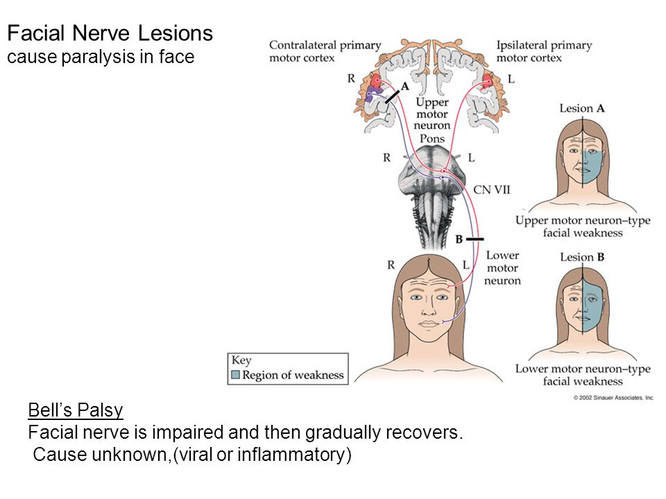 Facial Nerve Lesions cause paralysis in face Bell's Palsy