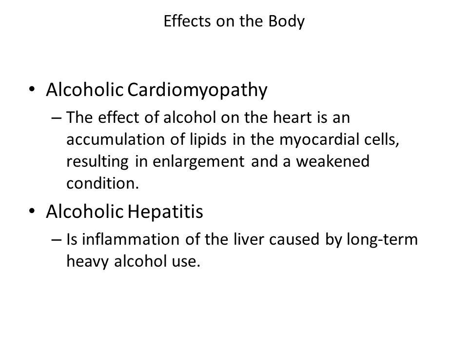Alcoholic Cardiomyopathy