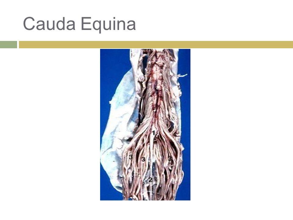 Cauda Equina