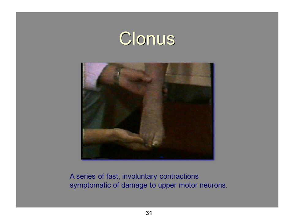 Clonus A series of fast, involuntary contractions symptomatic of damage to upper motor neurons.