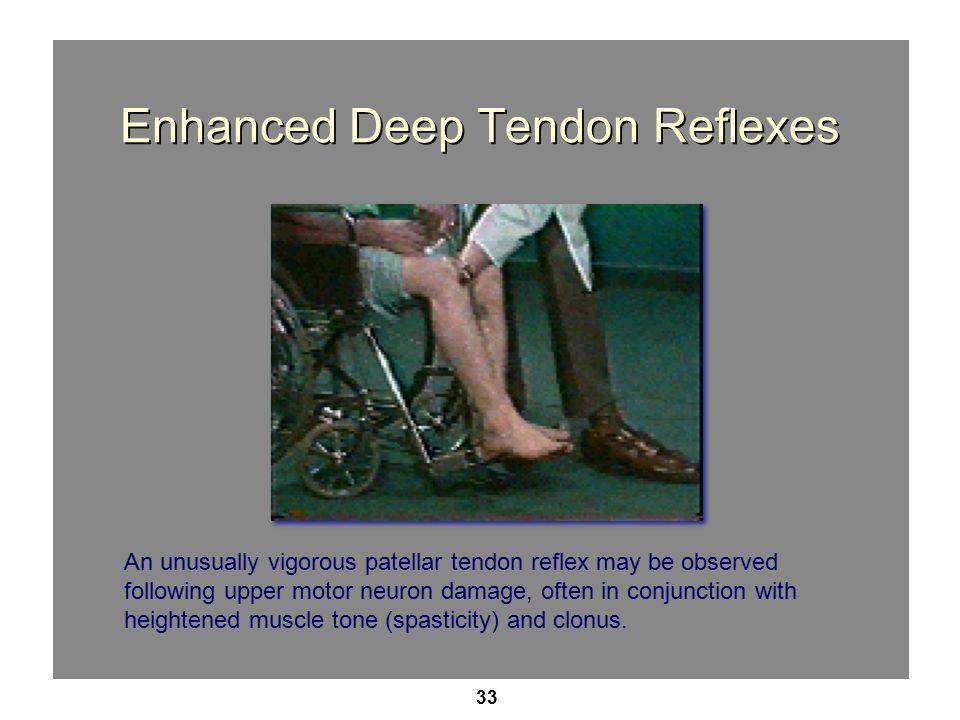 Enhanced Deep Tendon Reflexes