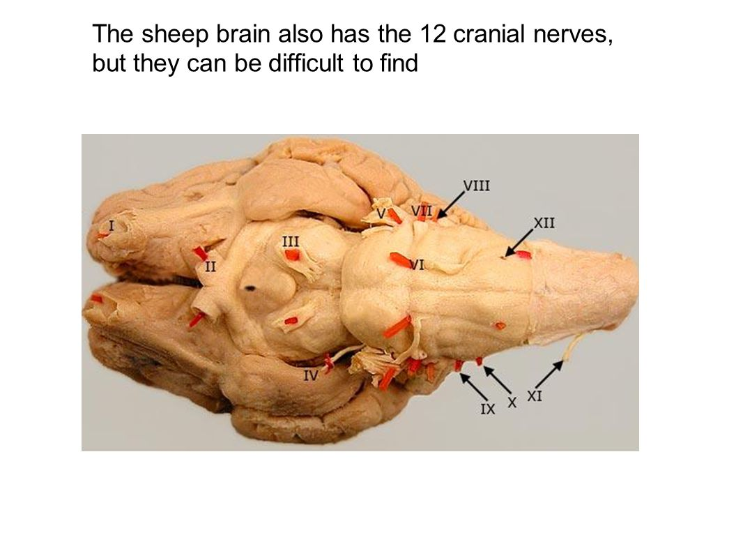 The sheep brain also has the 12 cranial nerves, but they can be difficult to find