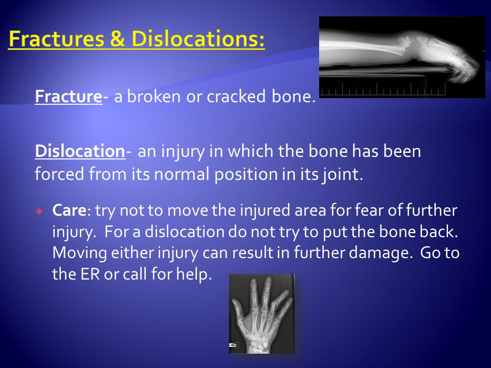 Fractures & Dislocations: