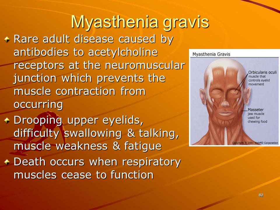 Myasthenia gravis