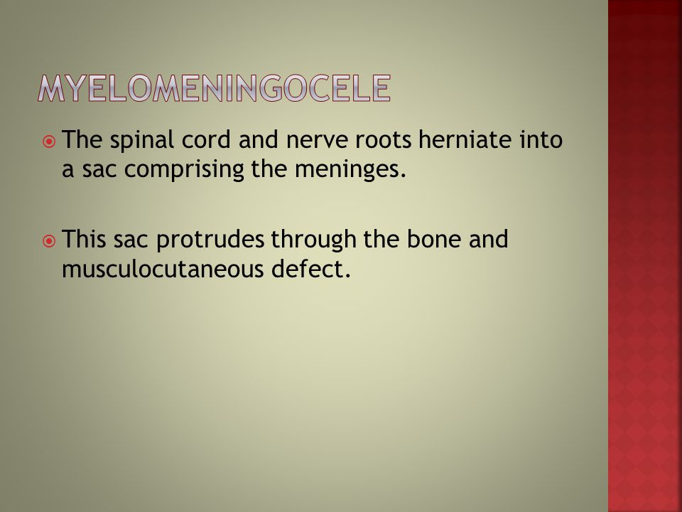 Myelomeningocele The spinal cord and nerve roots herniate into a sac comprising the meninges.