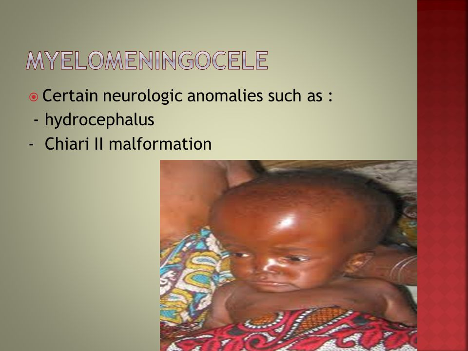 Myelomeningocele Certain neurologic anomalies such as :