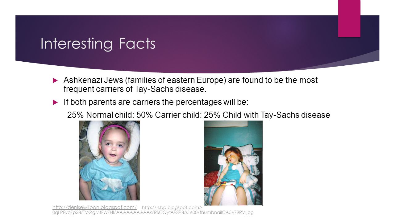 Interesting Facts Ashkenazi Jews (families of eastern Europe) are found to be the most frequent carriers of Tay-Sachs disease.