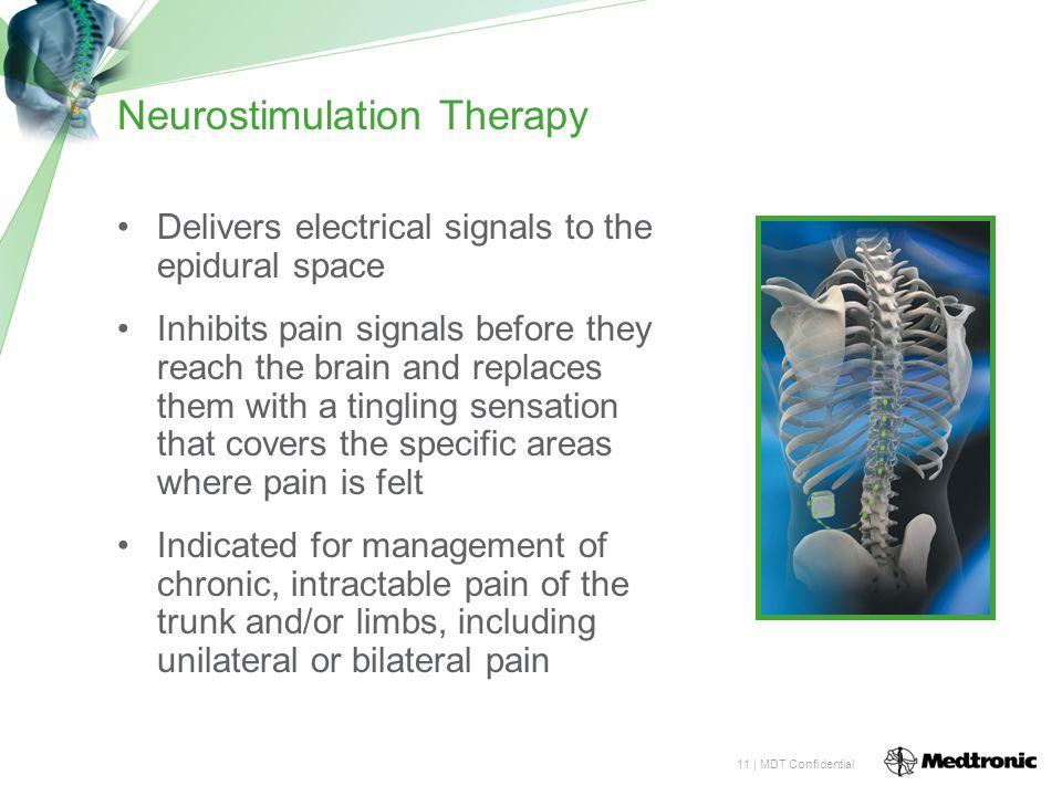 Neurostimulation Therapy