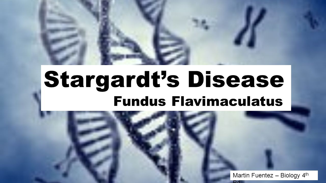 Stargardt's Disease Fundus Flavimaculatus