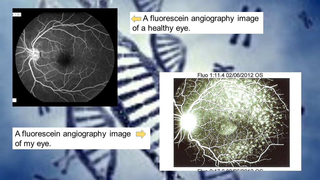 A fluorescein angiography image of a healthy eye.
