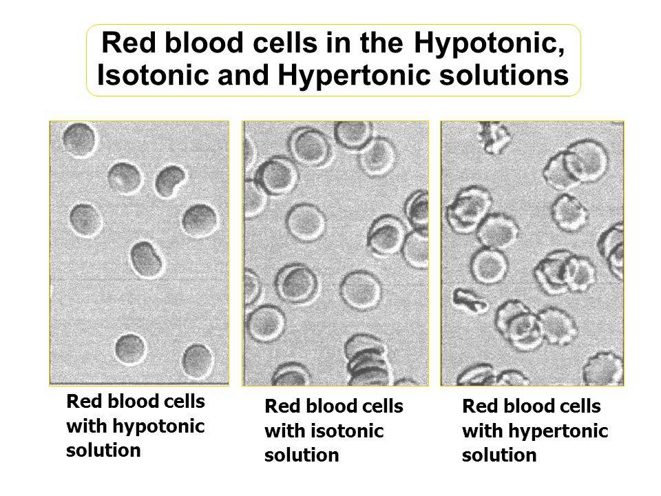 Red blood cells in the Hypotonic, Isotonic and Hypertonic solutions