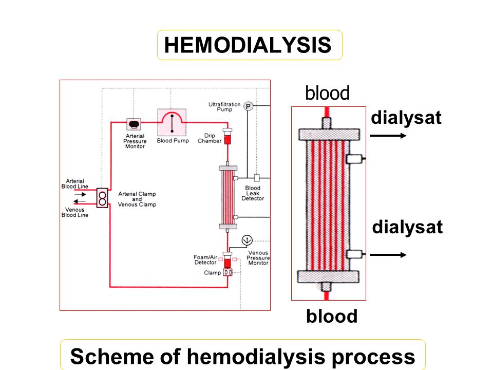 Scheme of hemodialysis process
