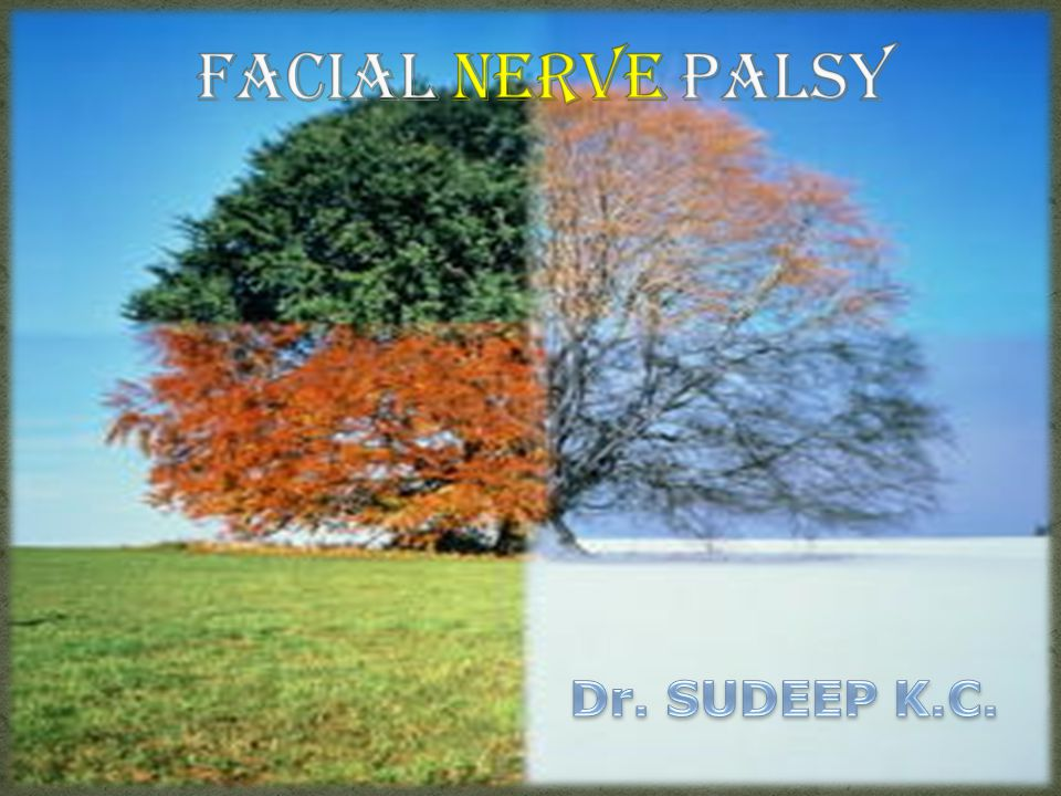 Facial Nerve Palsy Dr. SUDEEP K.C.