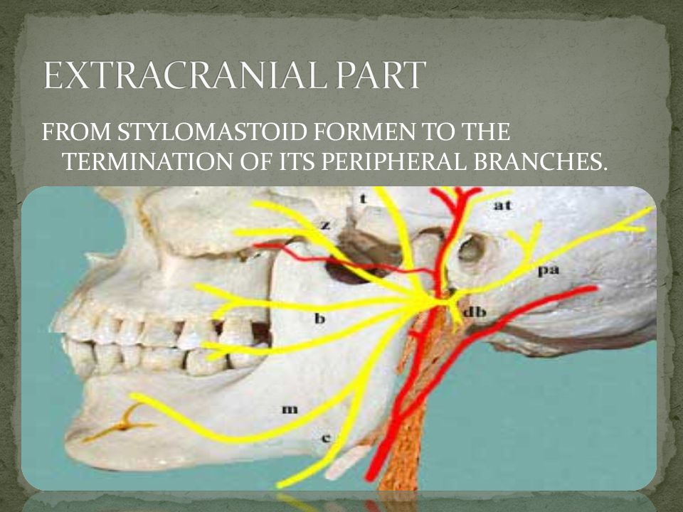 EXTRACRANIAL PART FROM STYLOMASTOID FORMEN TO THE TERMINATION OF ITS PERIPHERAL BRANCHES.