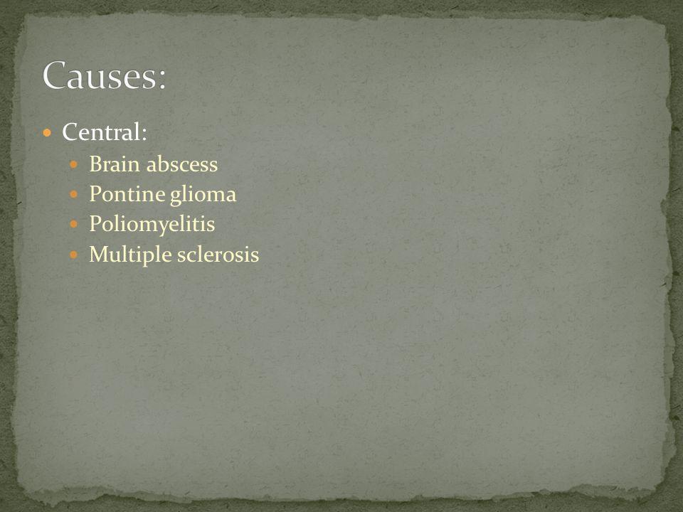 Causes: Central: Brain abscess Pontine glioma Poliomyelitis