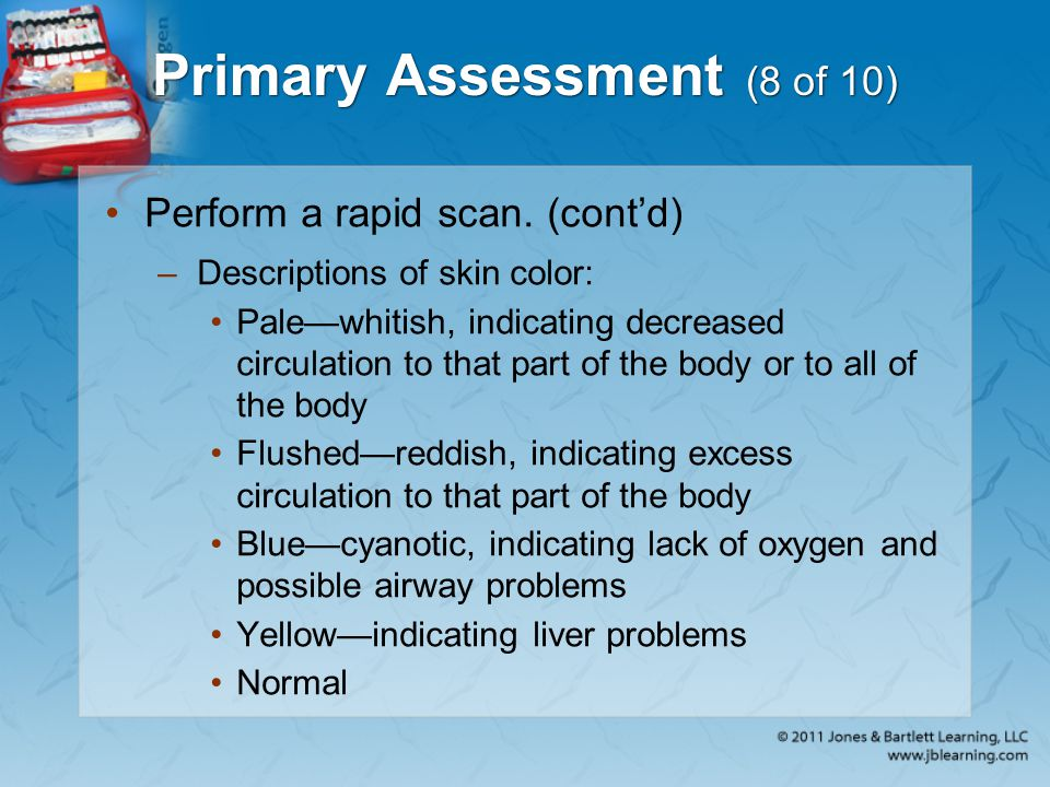 Primary Assessment (8 of 10)