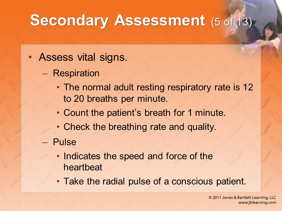 Secondary Assessment (5 of 13)