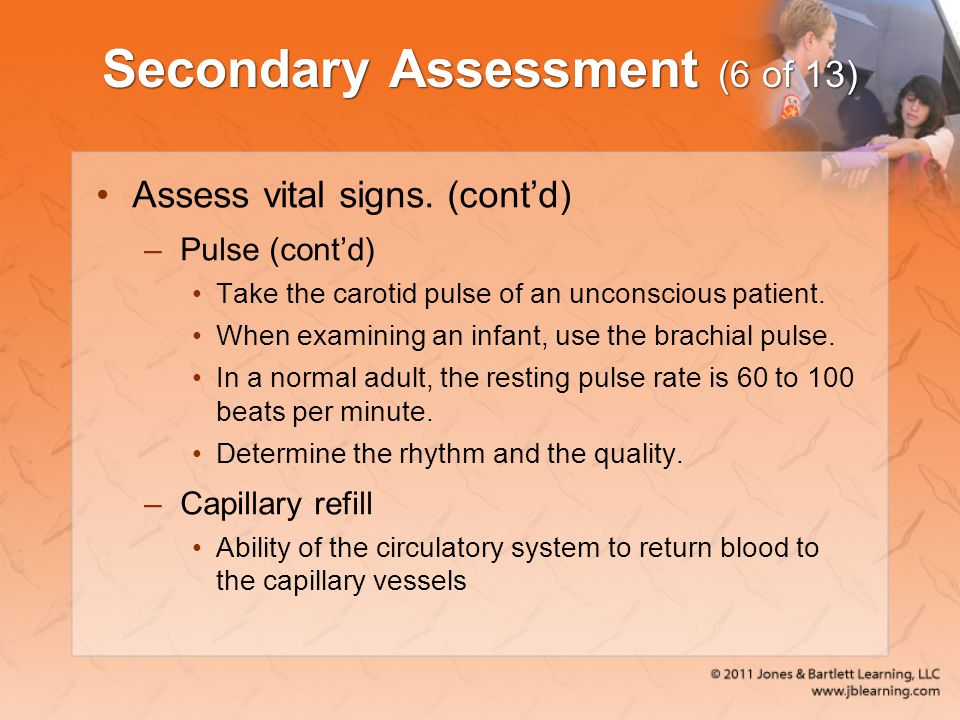 Secondary Assessment (6 of 13)