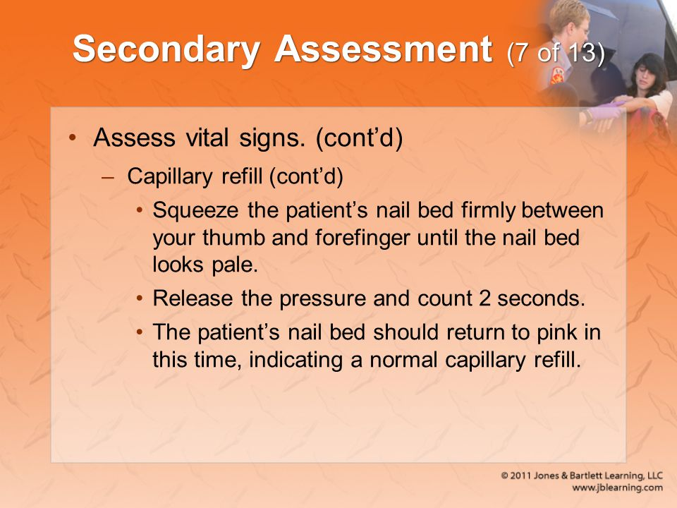 Secondary Assessment (7 of 13)