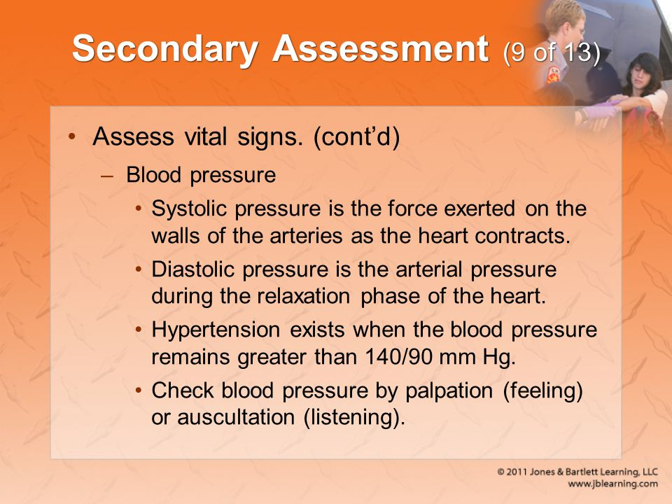 Secondary Assessment (9 of 13)
