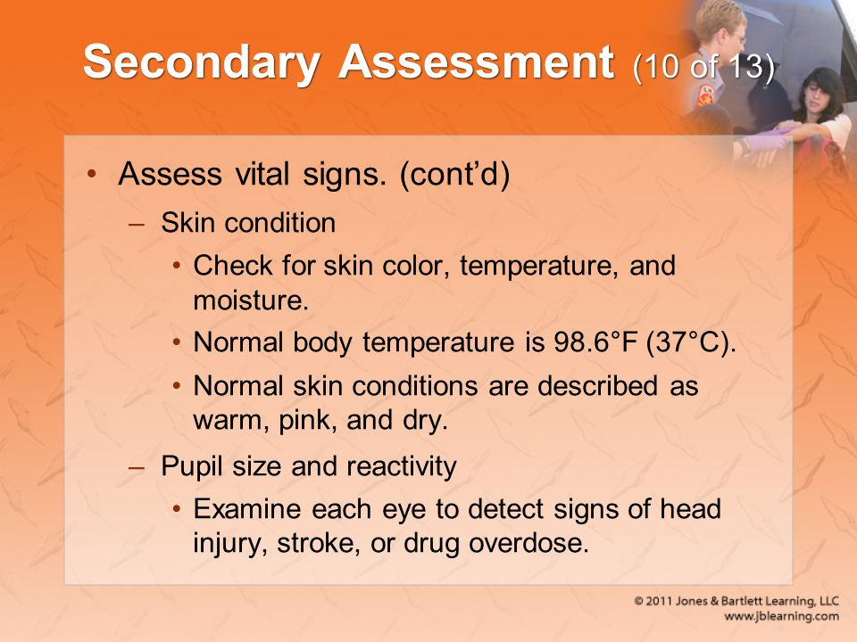 Secondary Assessment (10 of 13)