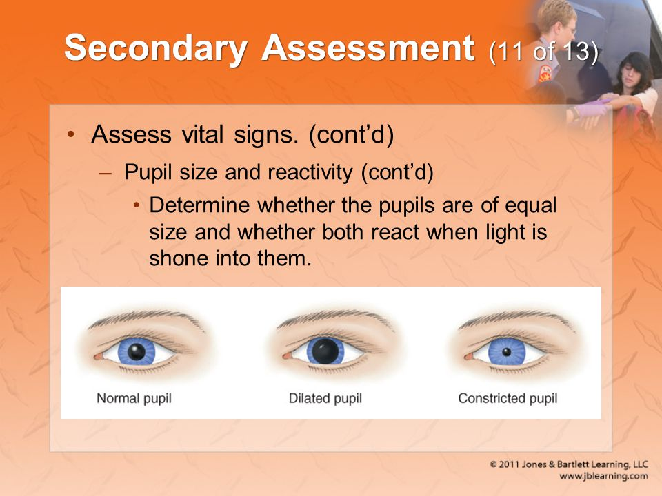 Secondary Assessment (11 of 13)