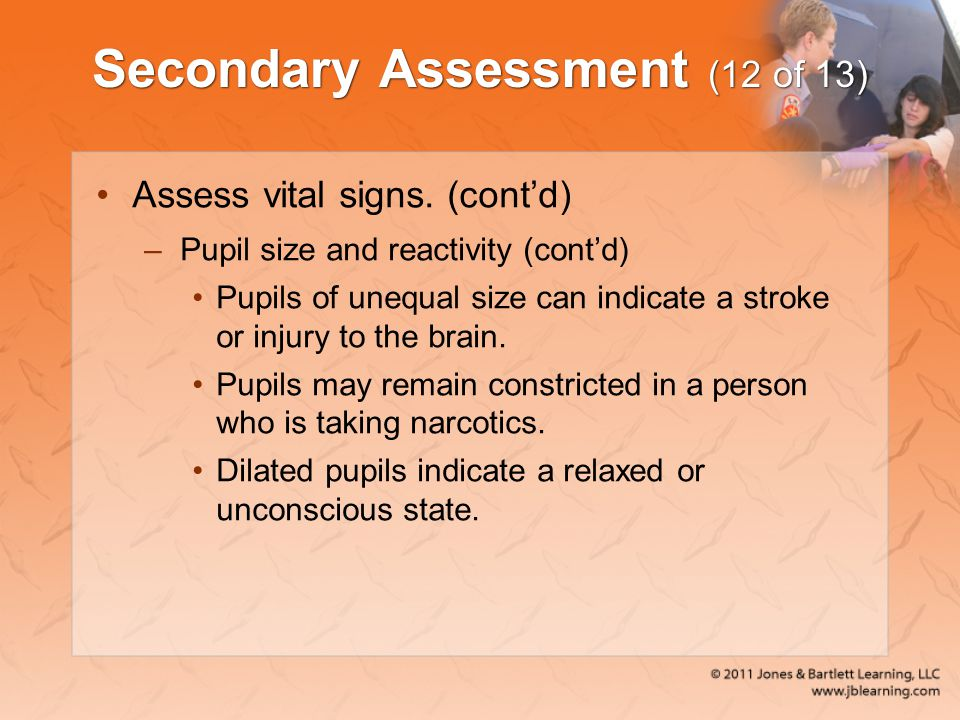Secondary Assessment (12 of 13)