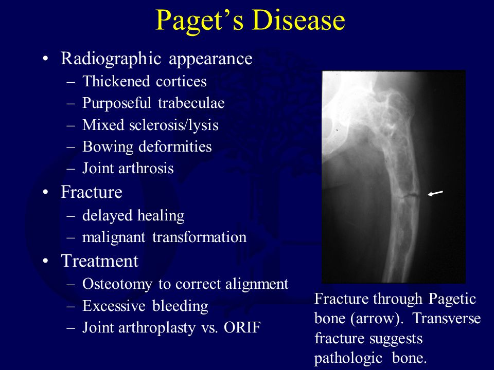 Paget's Disease Radiographic appearance Fracture Treatment