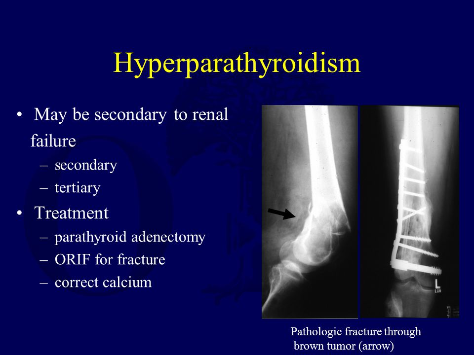 Hyperparathyroidism May be secondary to renal failure Treatment