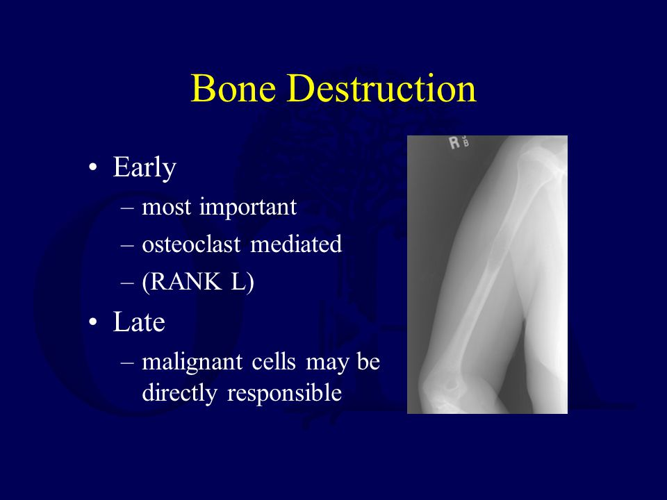 Bone Destruction Early Late most important osteoclast mediated