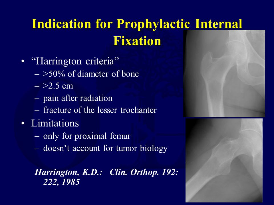 Indication for Prophylactic Internal Fixation