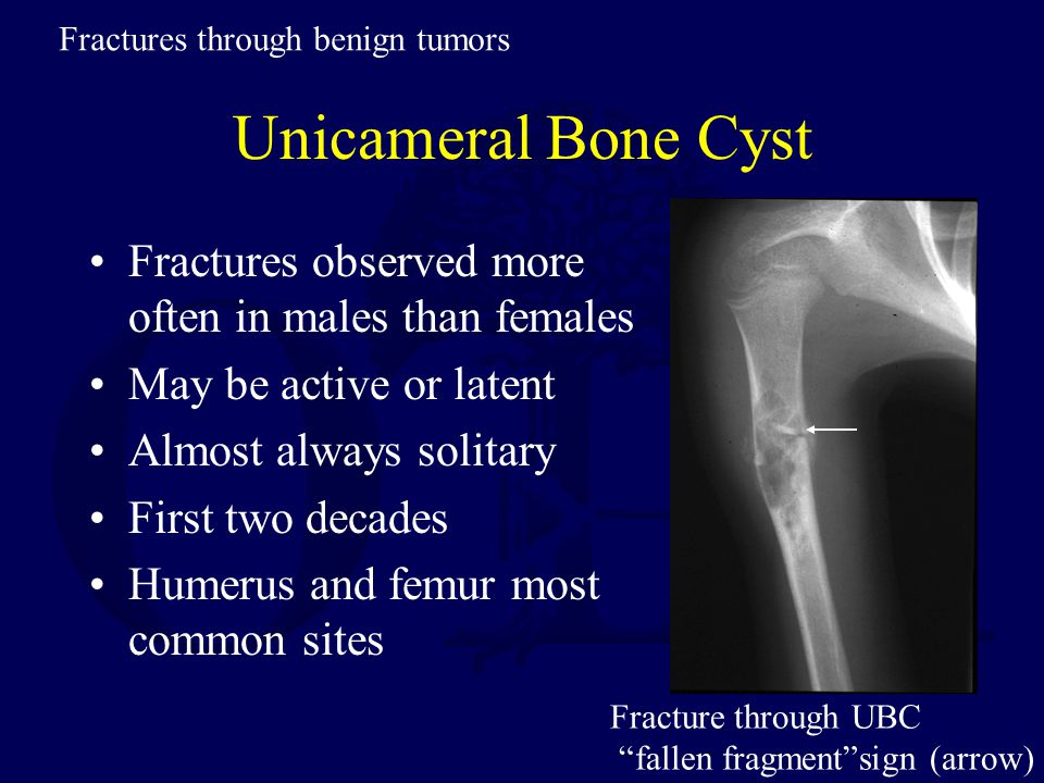 Fractures through benign tumors