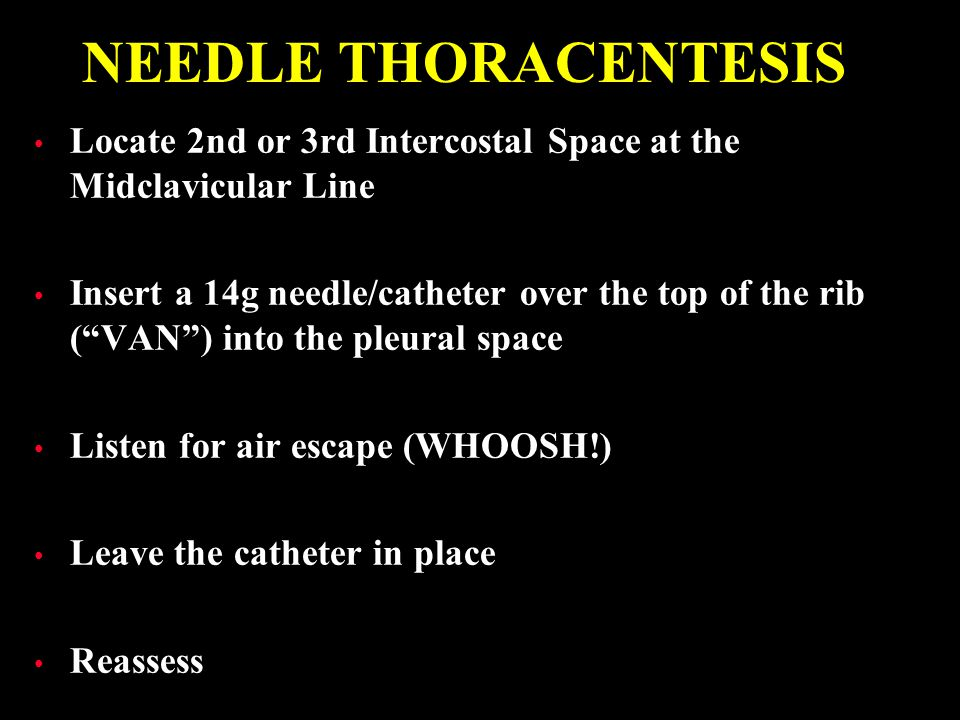 NEEDLE THORACENTESIS Locate 2nd or 3rd Intercostal Space at the Midclavicular Line.