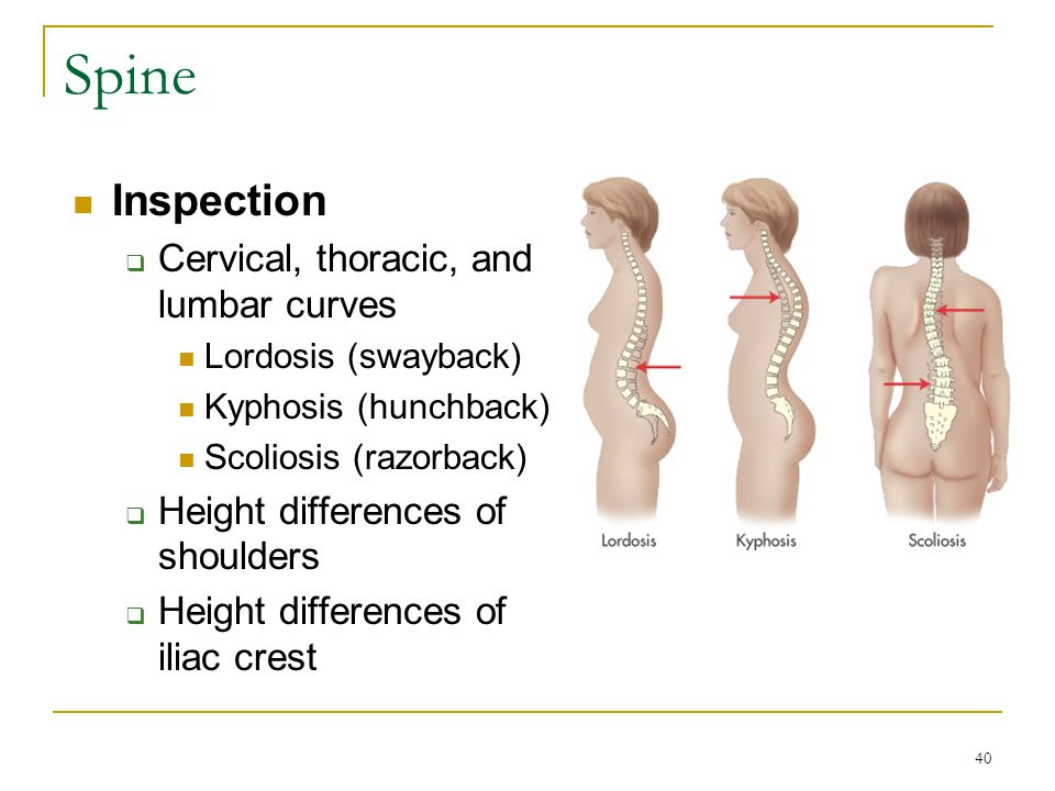 Spine Inspection Cervical, thoracic, and lumbar curves