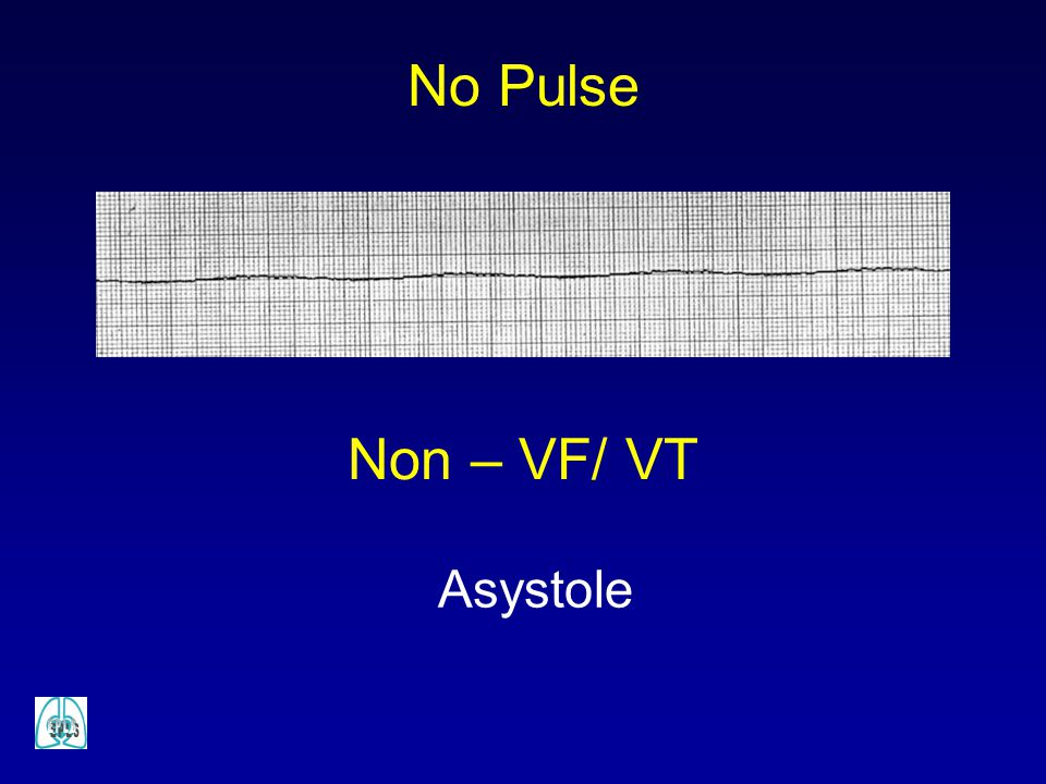 No Pulse Non – VF/ VT Asystole
