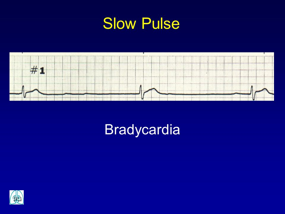 Slow Pulse Bradycardia